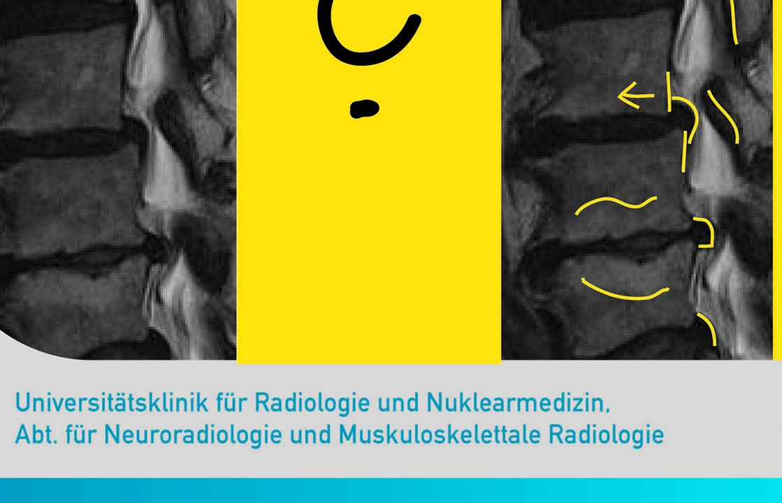 radiologisches diagnosetraining